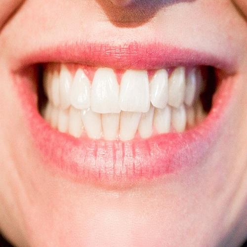 ¿Sabías que los dientes blancos no existen?