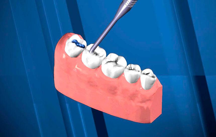 ¿Qué son y para qué sirven los sellantes dentales?