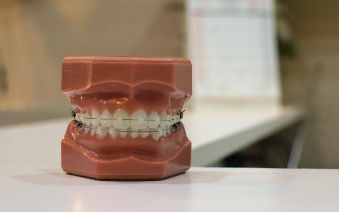La ortodoncia con brackets: todo lo que necesitas saber